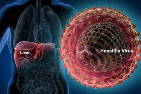 انواع هپاتیت | درمان هپاتیت | شیوع و فرکانس هپاتیت در ایران | راه های کنترل و پیشگیری و درمان