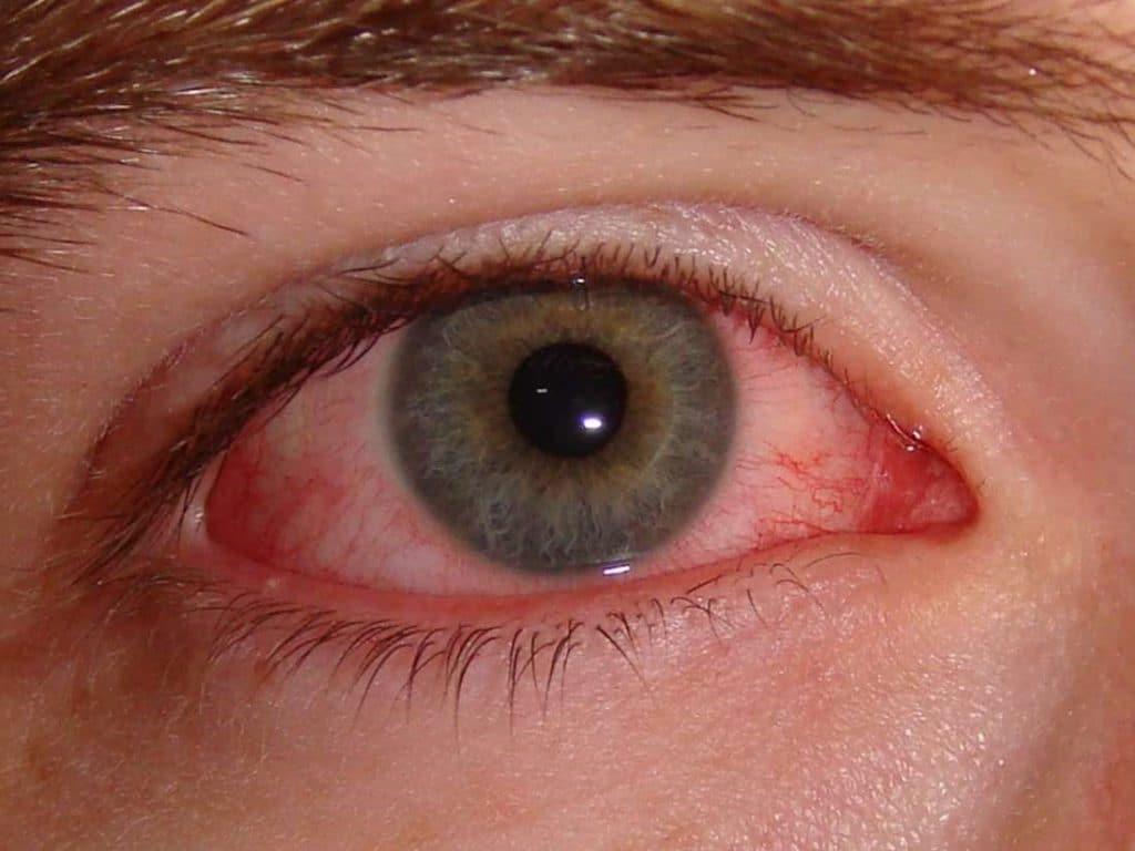 تصویری از یک فرد مبتلا به ورم ملتحمه چشم